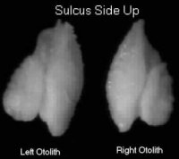 sulcus side up